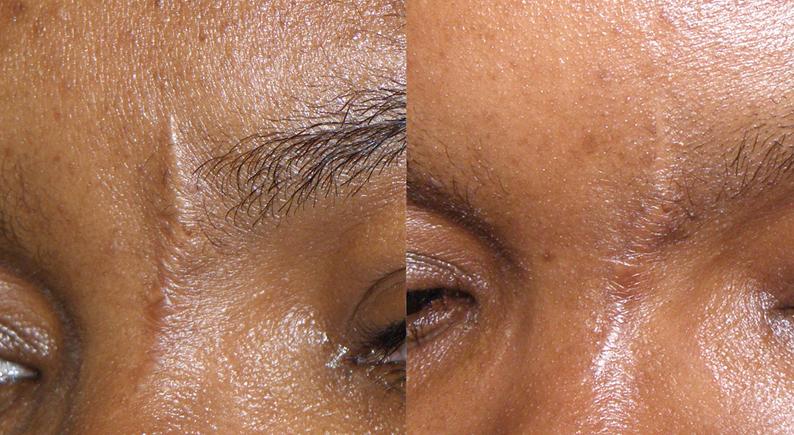 dr desmer destang scar treatment